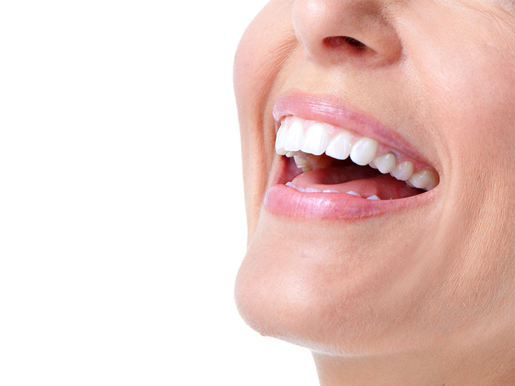 Should you make a teeth whitening appointment?