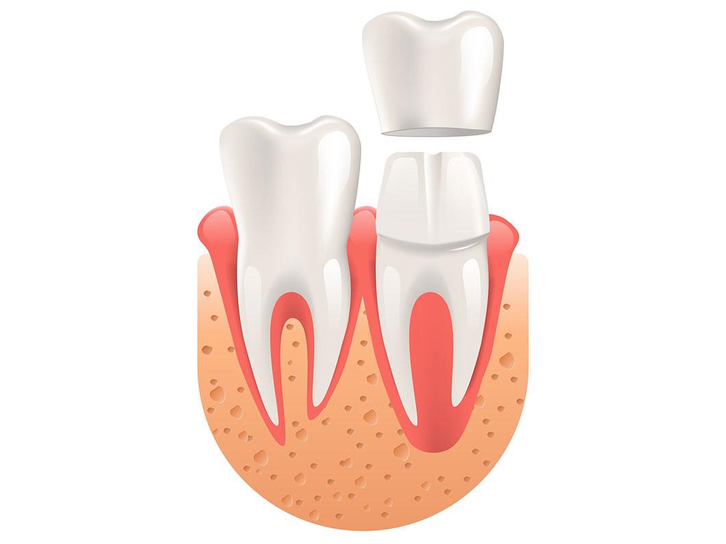 Can dental veneers fix your smile?